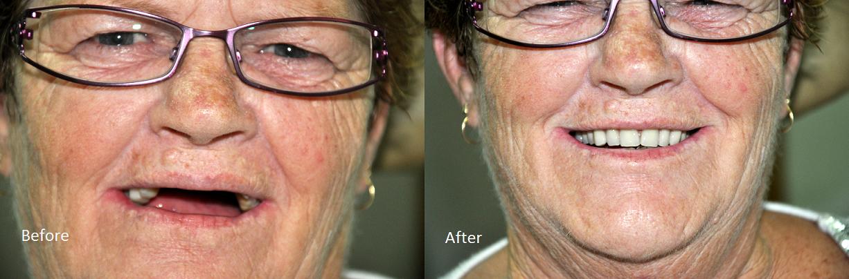 Denture Results