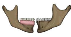 denture adjustment