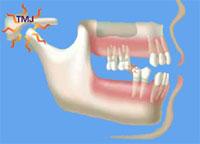 denture implant solutions