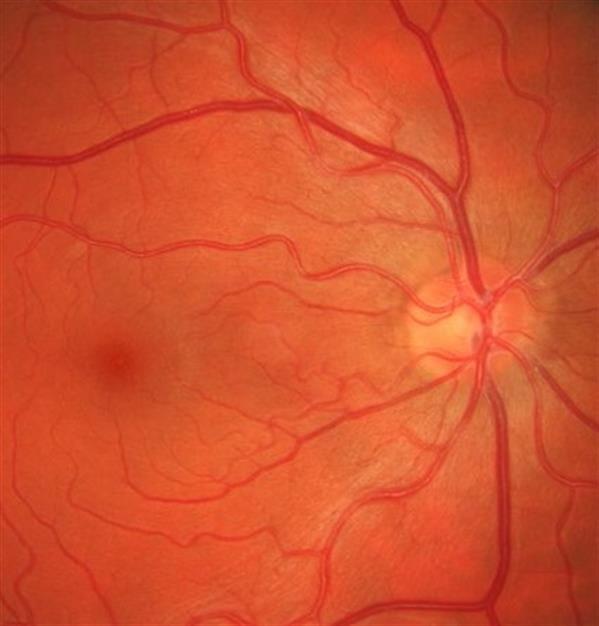 Why diabetics should have regular eye tests.