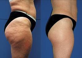 Endermologie Cellulite Reduction