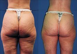 Cellulite Treatment Brisbane