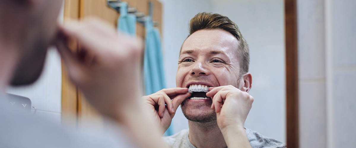 No Kidding! Why Teeth Straightening is a Popular Choice for Adults