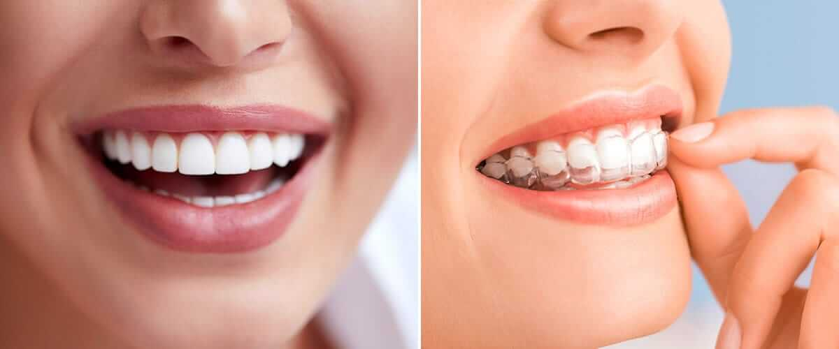 Invisalign vs. Veneers: Which is Best to Get a Straighter Smile?