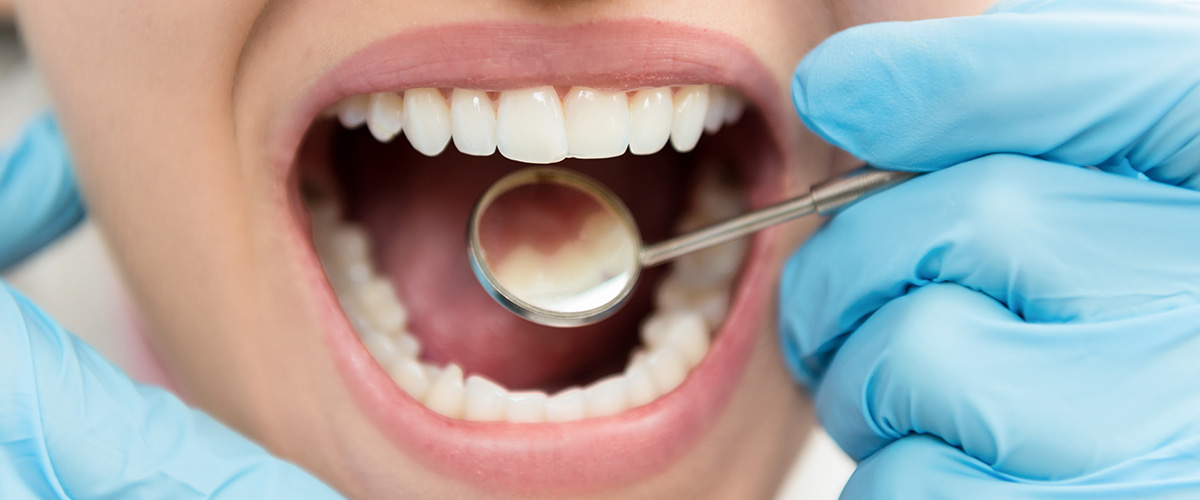 Dental Crown Problems and How to Avoid Them