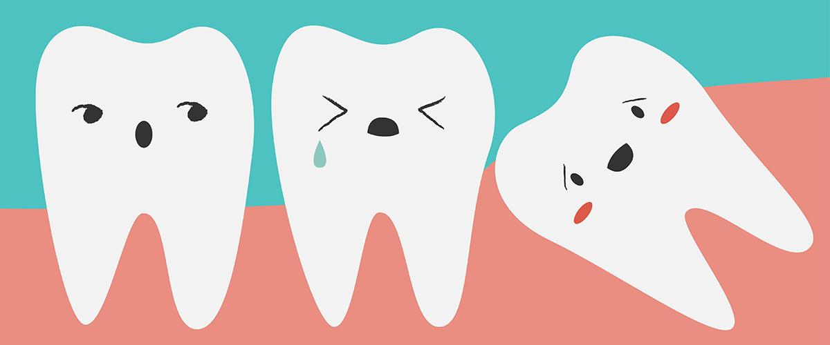 How Do I Know If I Need My Wisdom Teeth Removed?