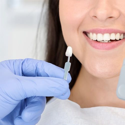 Teeth Whitening | Does it work on crowns?