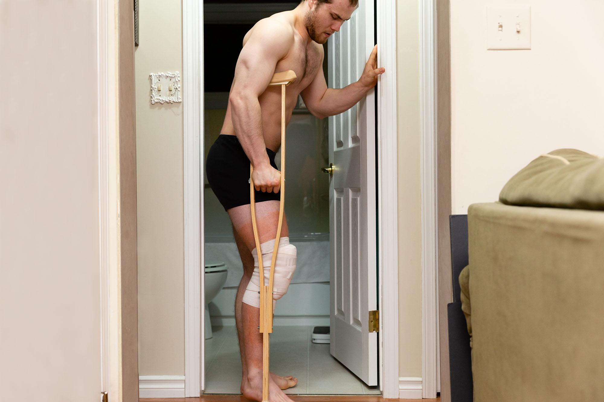 Anterior Cruciate Ligament Injury Treatment Options