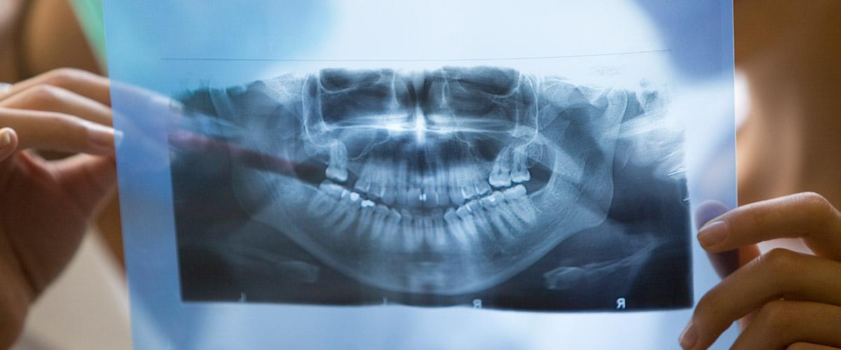 Treatment Spotlight: Oral Surgery