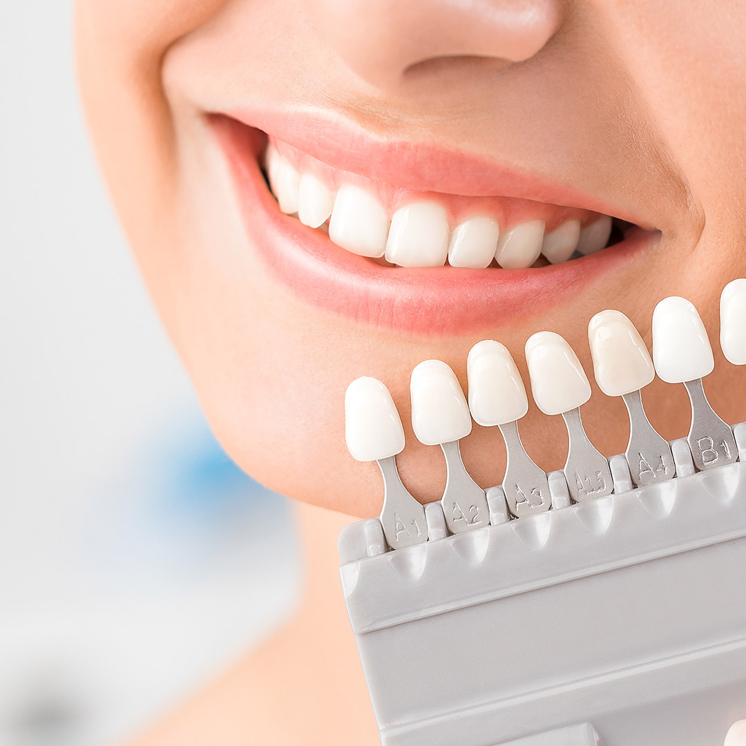 Treatment Spotlight | Teeth Whitening