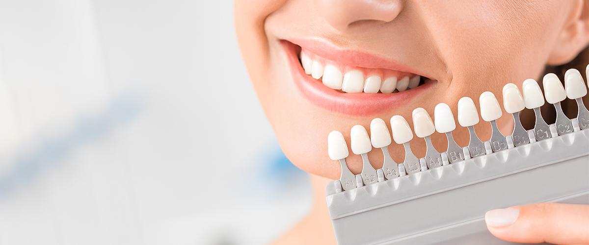 Treatment Spotlight | Teeth Whitening