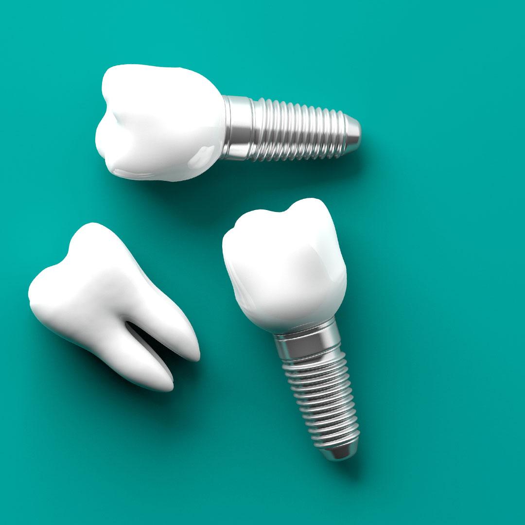 How Long Do Dental Prosthetics Last?